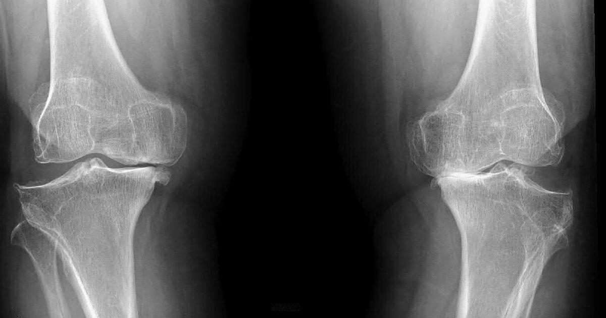 Image result for gonartrosis